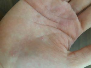 NALC(ナルク) ハンドクリーム 手に平に塗った状態